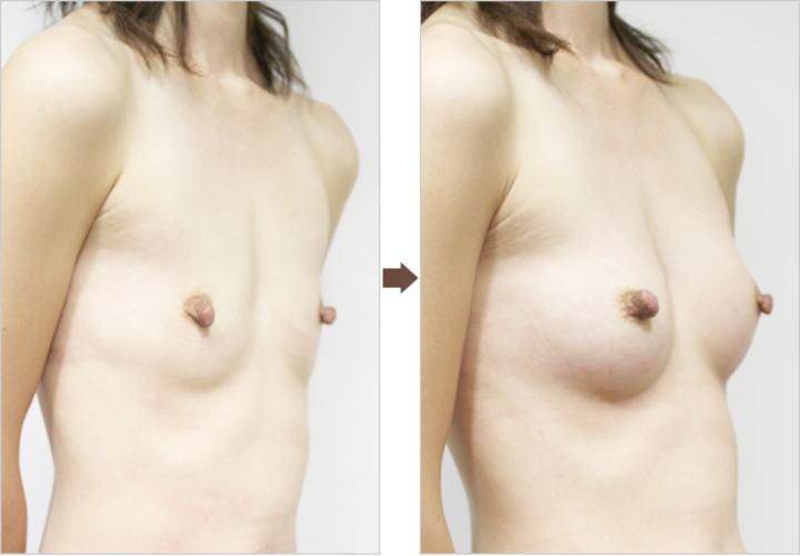 豊胸手術のBefore&After12