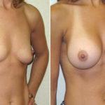 豊胸手術のBefore&After